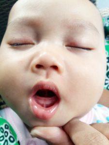 44+ Gambar gusi bayi mau tumbuh gigi inspirations